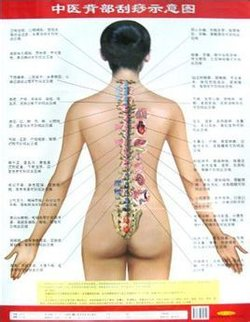 中医背部刮痧示意图