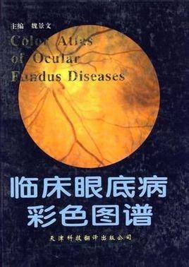 临床眼底病彩色图谱